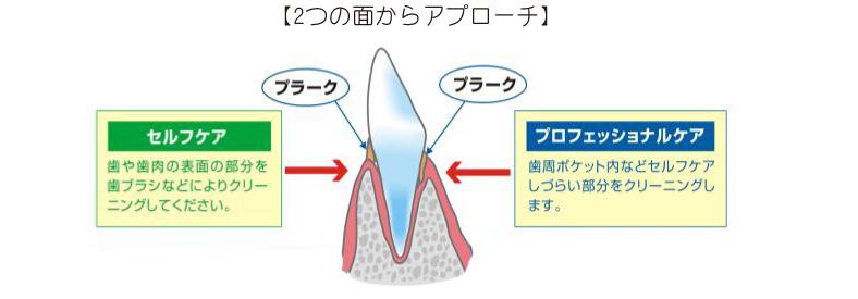 歯周病を予防するには?