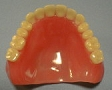 局部義歯(部分入れ歯)