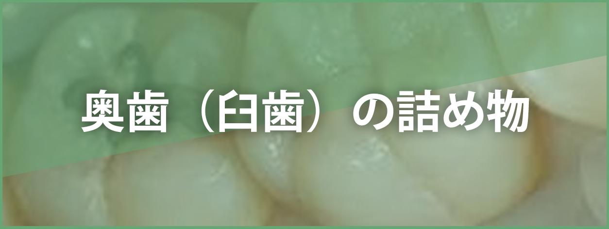 奥歯(臼歯)の詰め物
