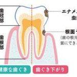 大人のむし歯 根面う蝕